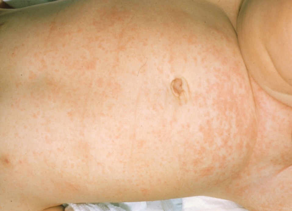 Strep Rash or Viral Scarlatina Rash - Healthy Skin Care